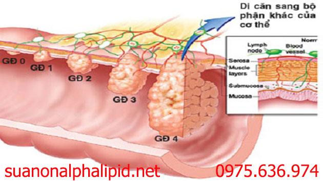 Các giai đoạn phát triển của bệnh ung thư