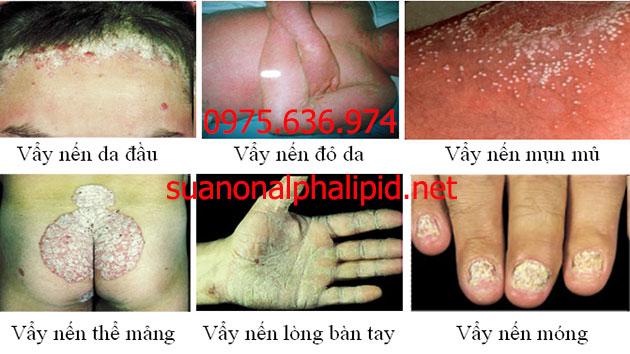 Các loại bệnh vảy nến thường gặp