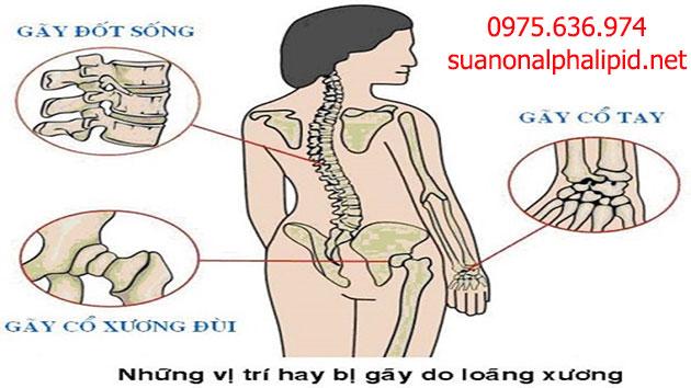 Biến chứng nguy hiểm của bệnh loãng xương